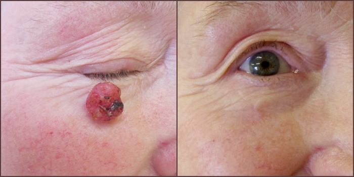 https://spencerhodges.co.uk/wp-content/uploads/2016/04/Skin-cancer-can-be-successfully-treated-for-page.jpg