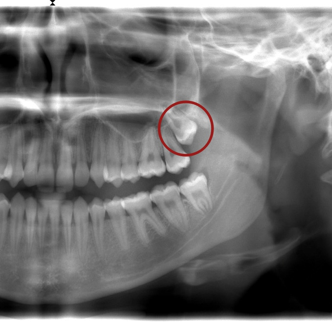 https://spencerhodges.co.uk/wp-content/uploads/2016/04/Wisdom-tooth-surgery-Spencer-Hodges.jpg